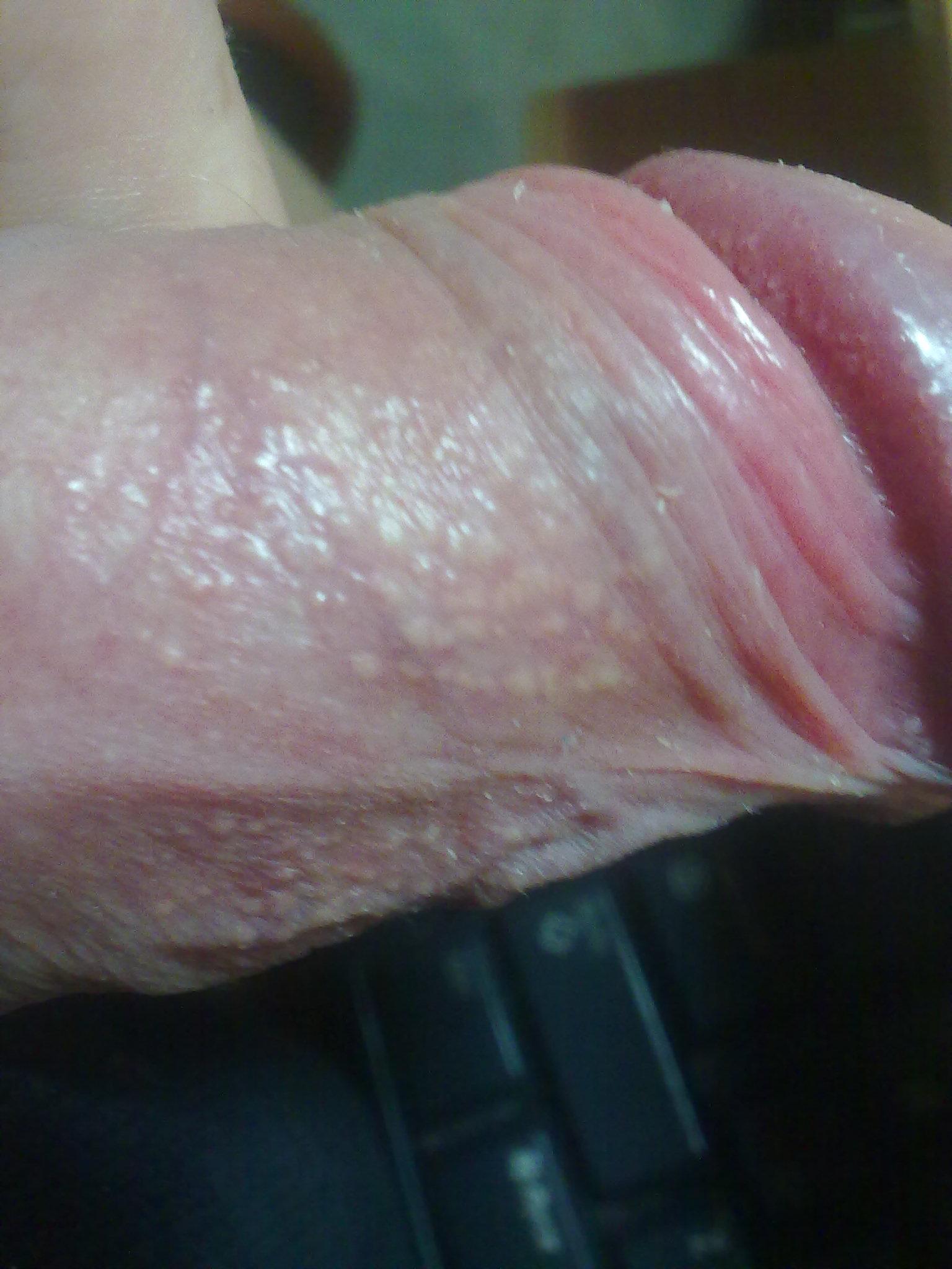 Мелкая сыпь на пенисе