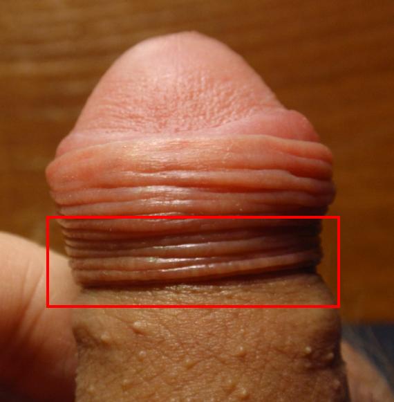 огулов лечение содой паразитов
