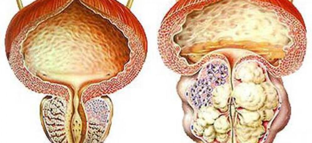 Профилактика ДГПЖ (доброкачественной гиперплазии предстательной железы – аденомы предстательной...
