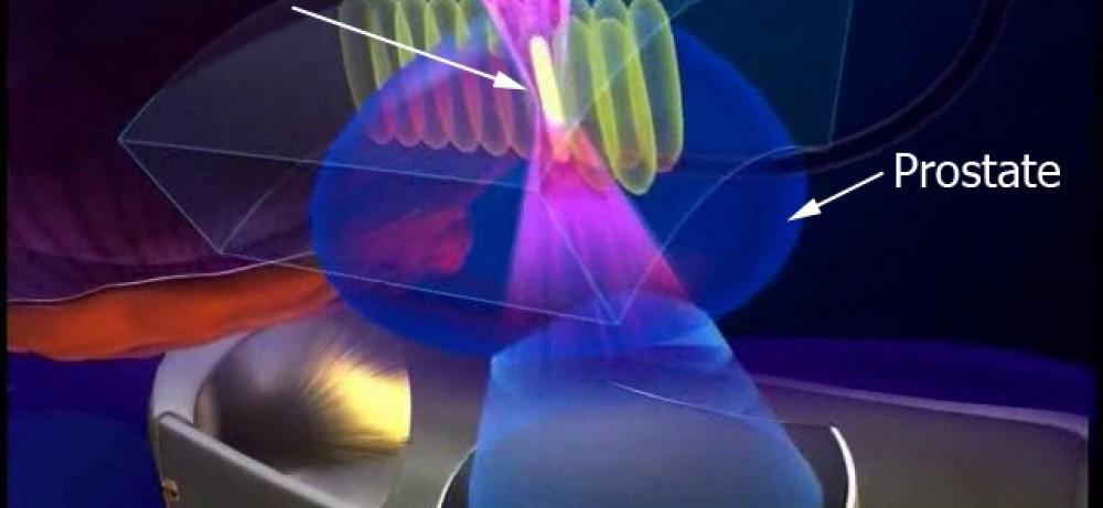 Высокоинтенсивный сфокусированный ультразвук для лечения РПЖ...