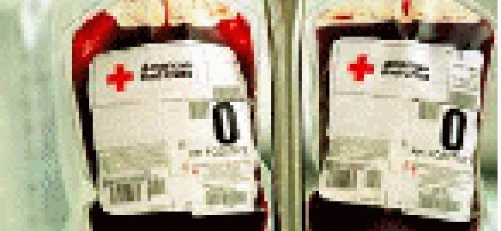 После удаления почки чаще требуется переливание крови