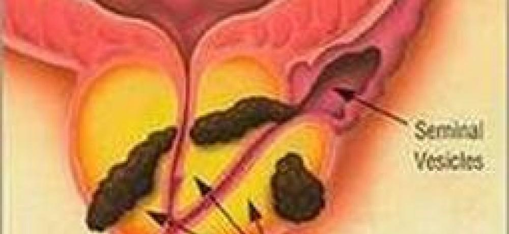 Арсенал новых средств против рака простаты