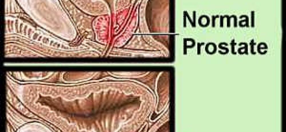 Новый метод диагностики РПЖ