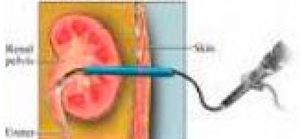 Эффективность терапии мочекаменной болезни