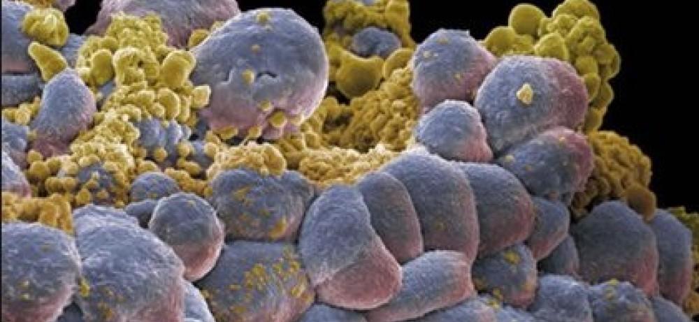 С чем связан рак полового члена?