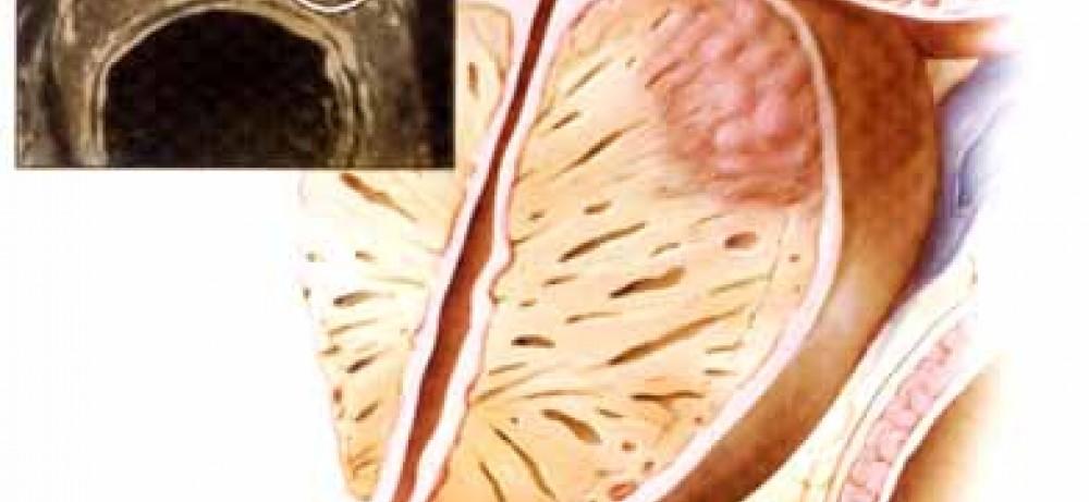 Рак простаты у мужчин пожилого возраста