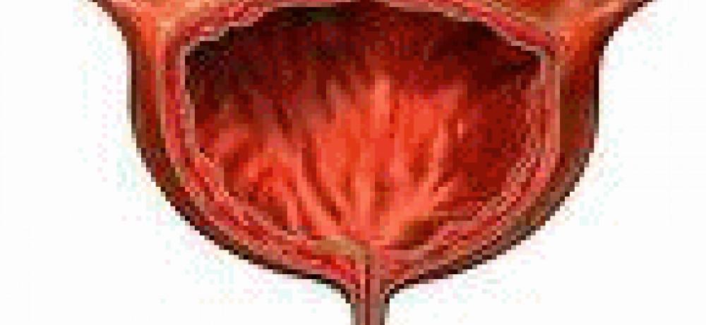 Белки теплового шока как маркёры рака мочевого пузыря