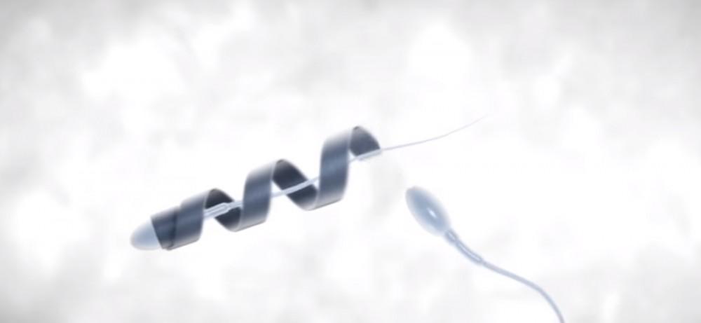 Неподвижные сперматозоиды - астенозооспермия