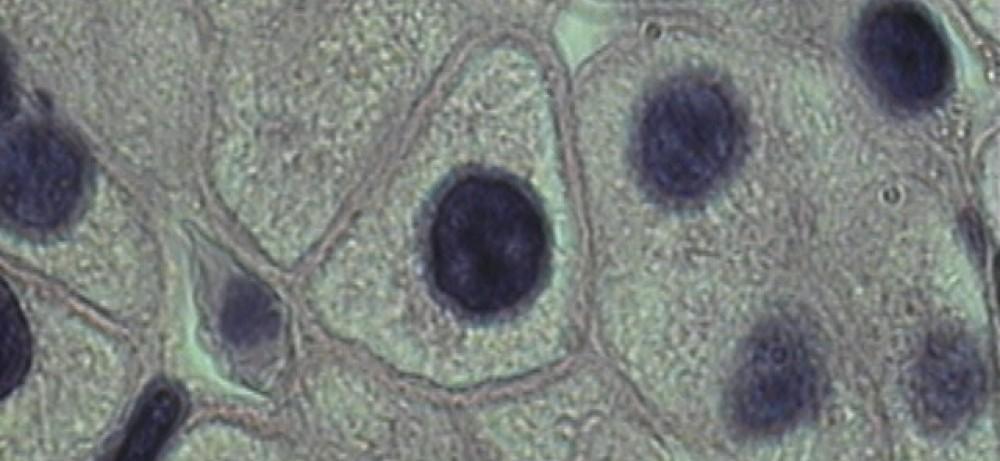 Лечение сложных случаев стриктуры уретры. Клеточные технологии в урологии...