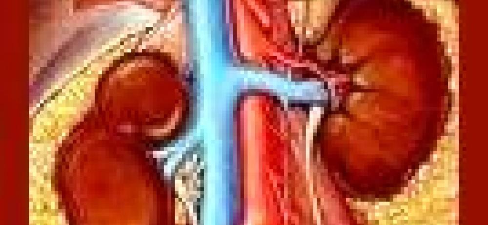 Лечение тяжелого поликистоза Толваптаном