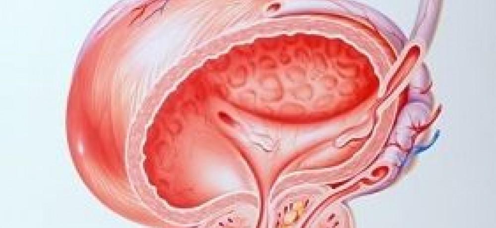 Простатит против рака предстательной железы