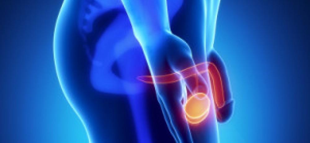 Рак яичка: продолжительность жизни и перспективы лечения...