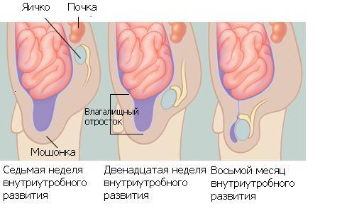 водянка яичка фото у новорожденного