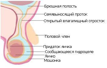 vlagalishniy-otrostok-bryushini-rezultat-uzi