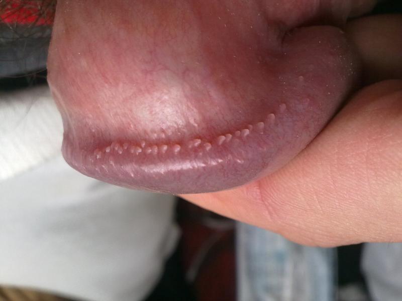 Эризипелоид