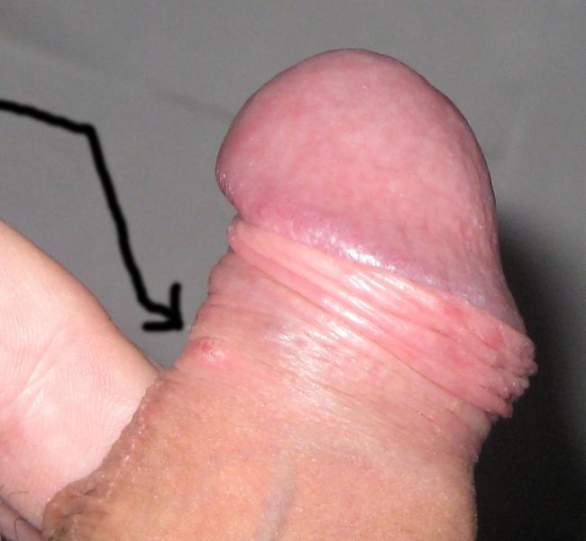 Что такое предстательная железа у мужчин фото