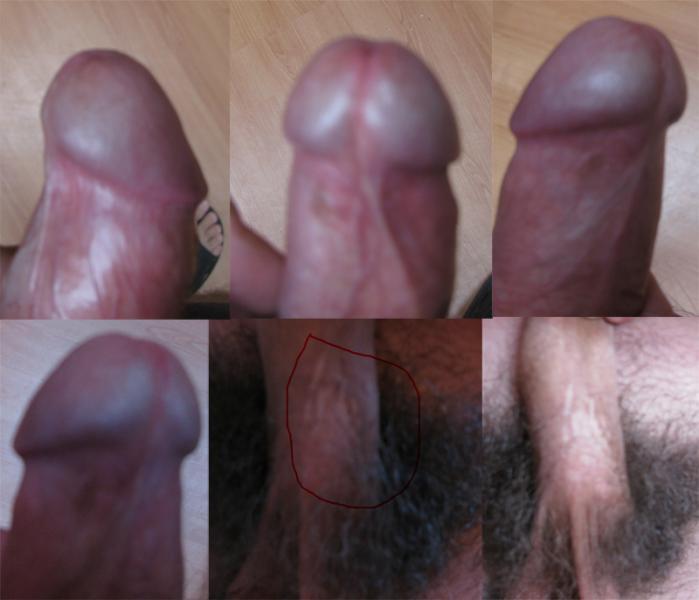 Я сделал пластику уздечки полового члена