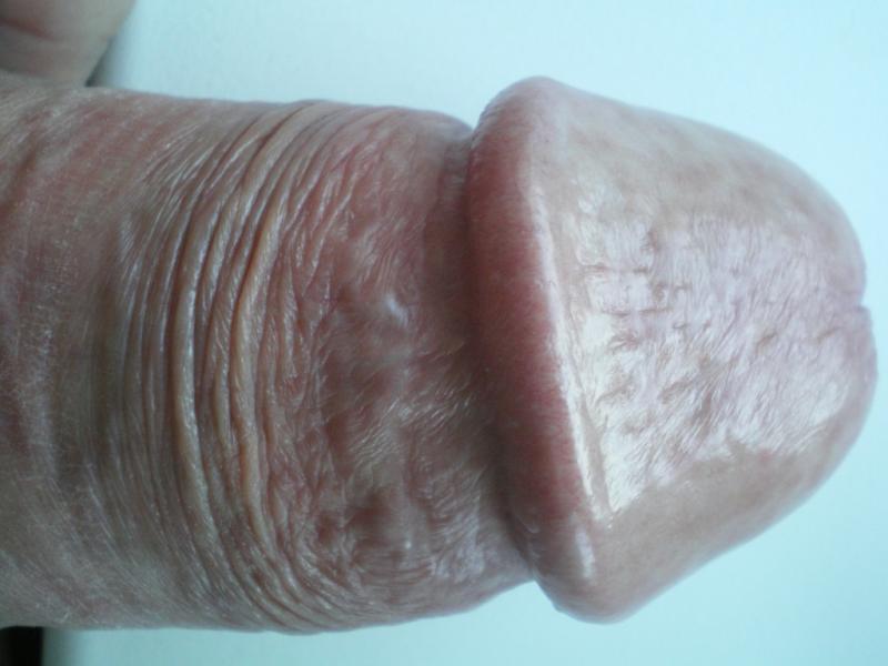 язвочки на половом члене
