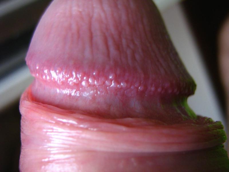 Увеличение размеров головки полового члена