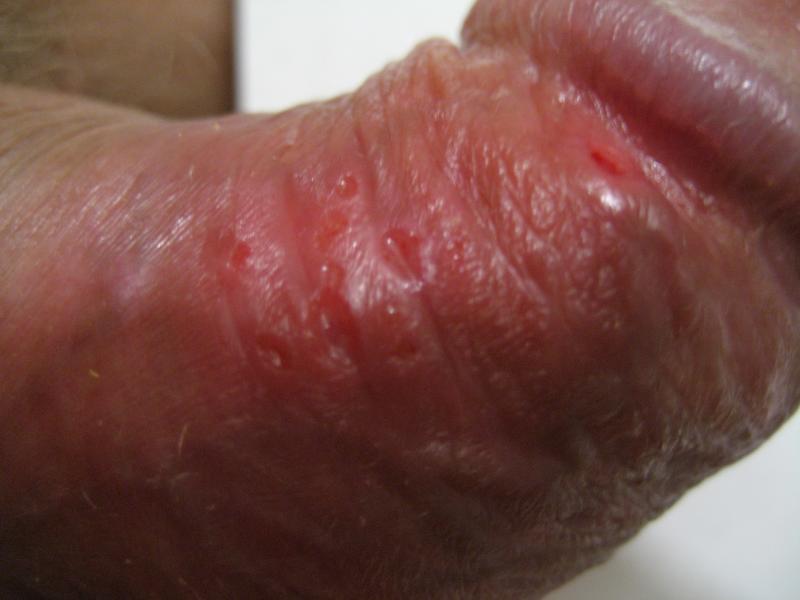 Во время секса натер кожу пениса