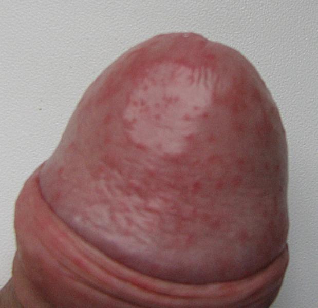 Маленькие пупырышке вокруг головки полового члена