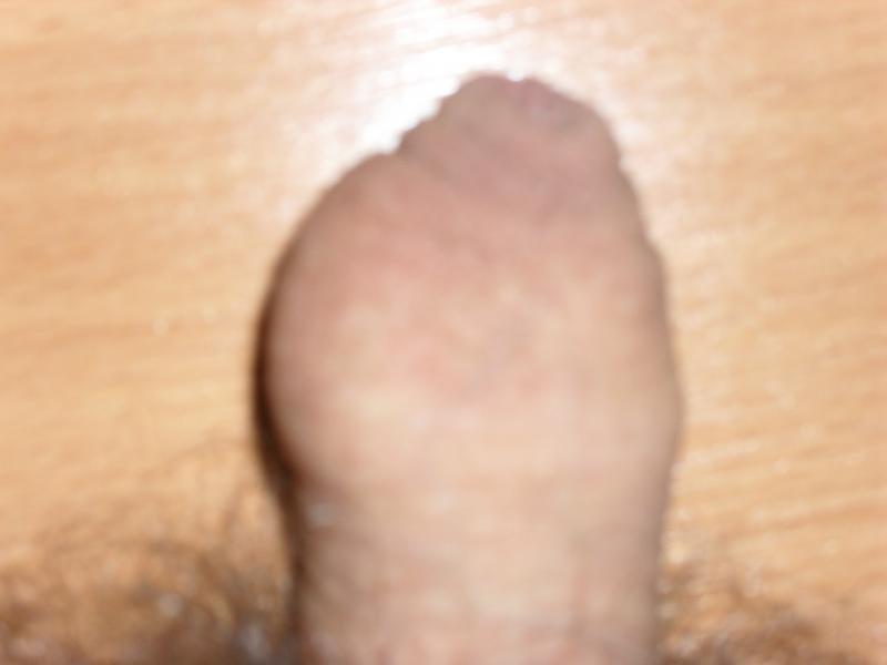 chlen-posle-masturbatsii