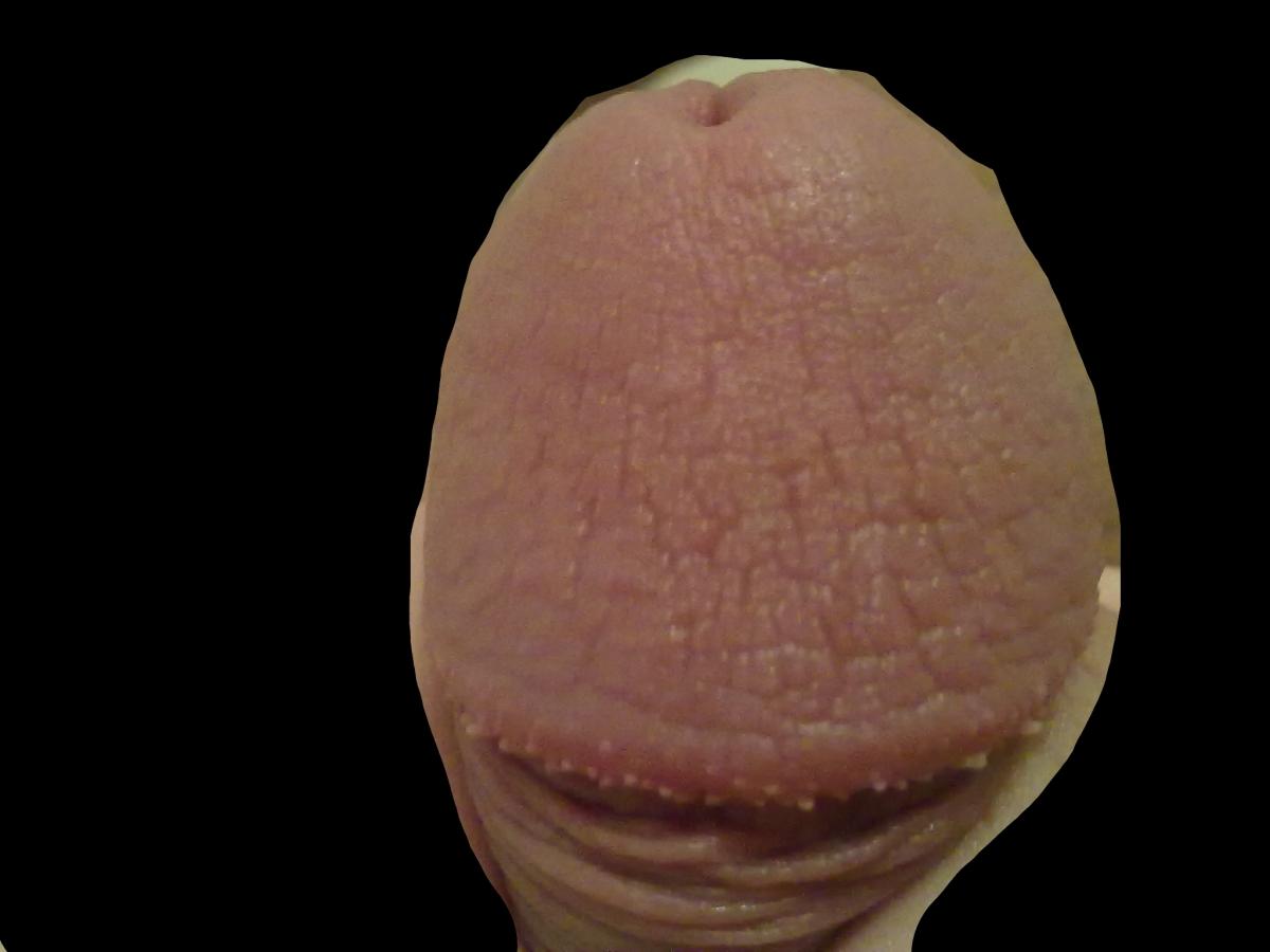 Половой пенис под микроскопом фото — pic 13