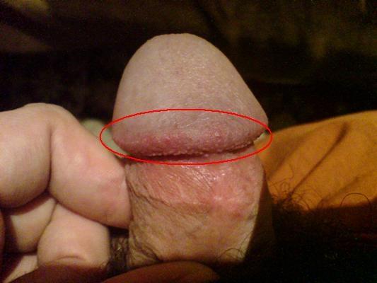 Причины боли после секса у женщин и мужчин - Webmedinfo.ru