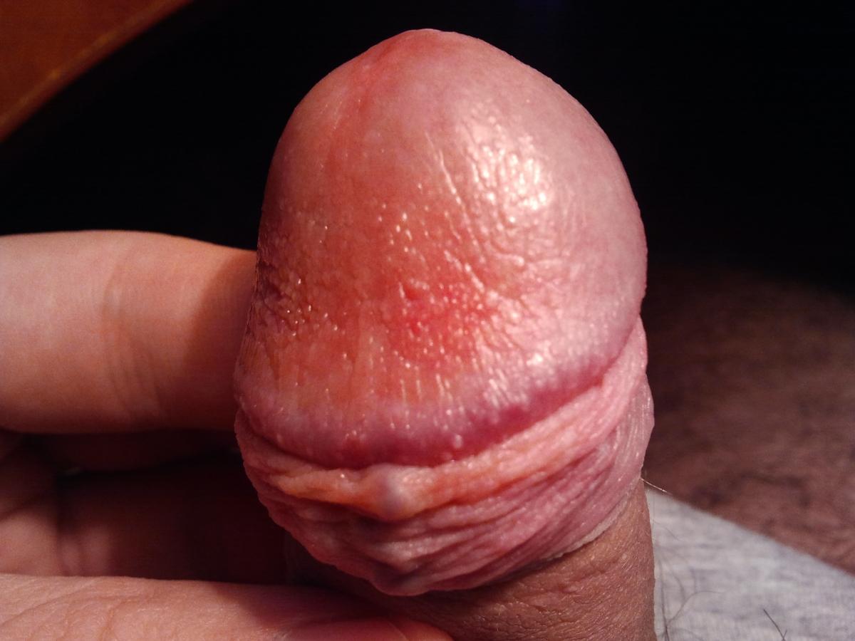 головка красная после спермы - 10