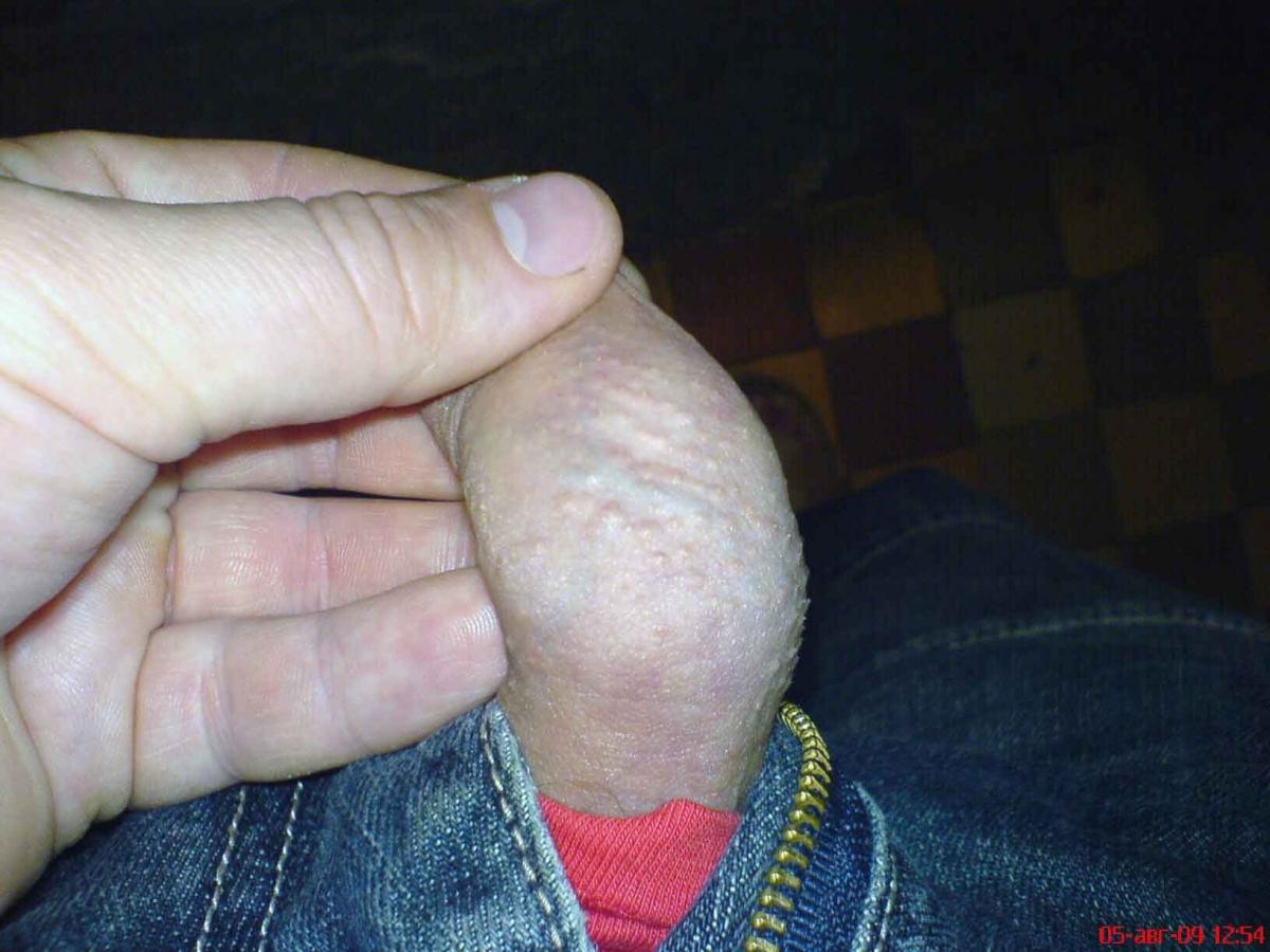Опух кожа члена