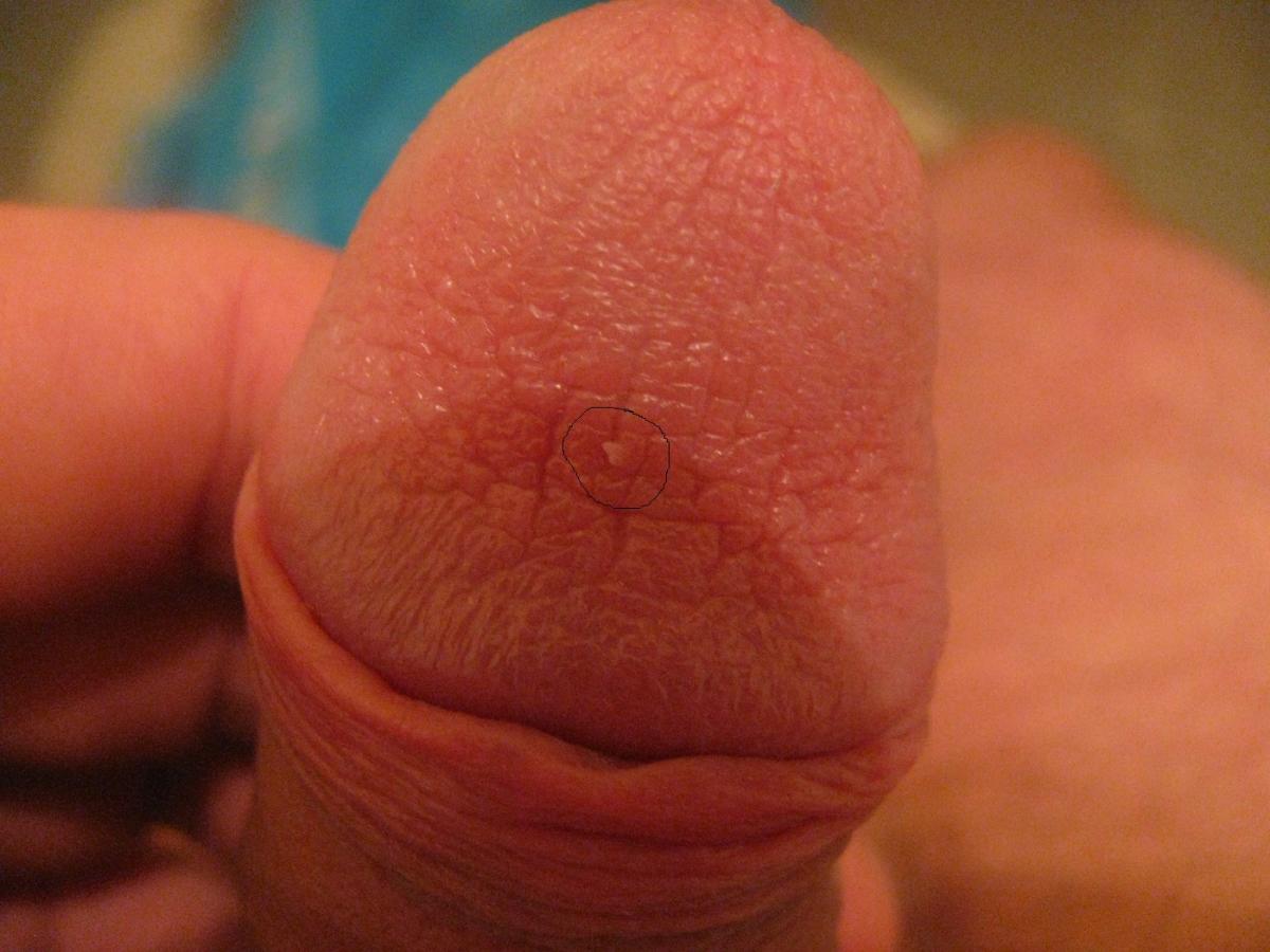kondilomi-na-penise