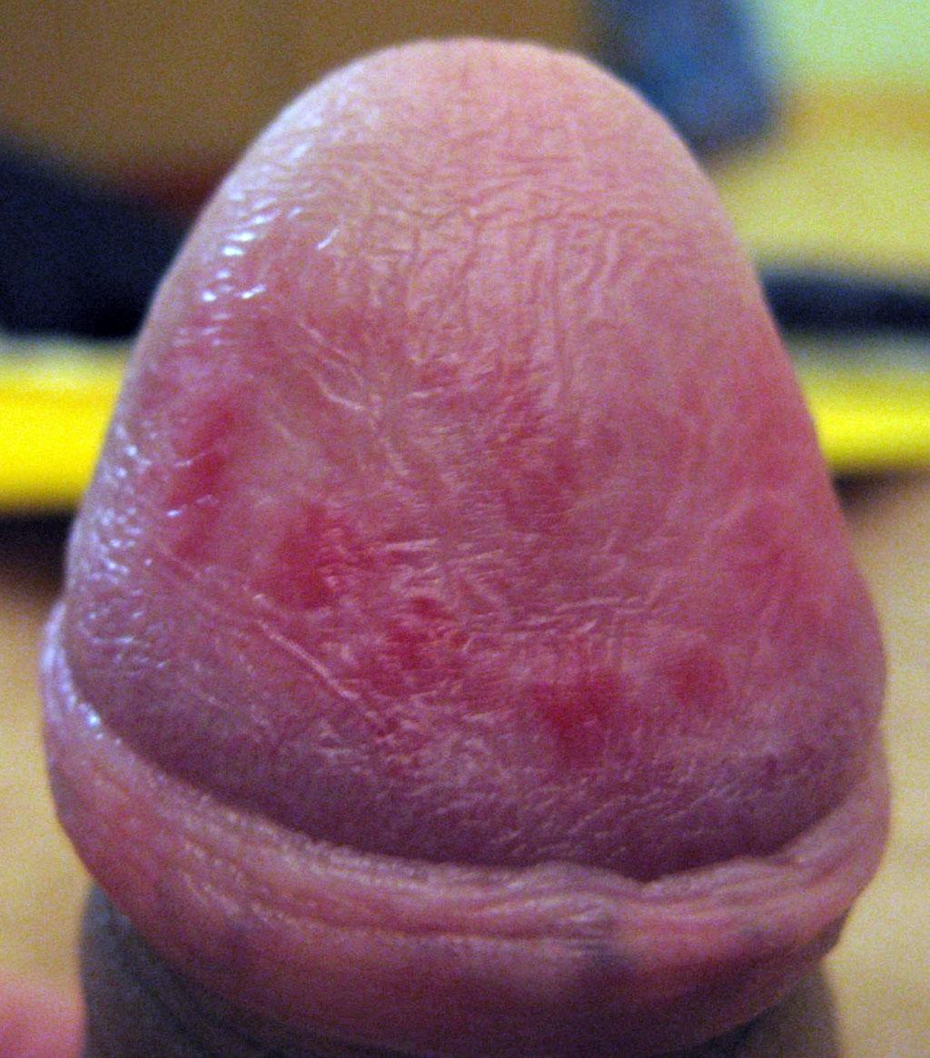 милашки псориаз на члене пенисе мужской