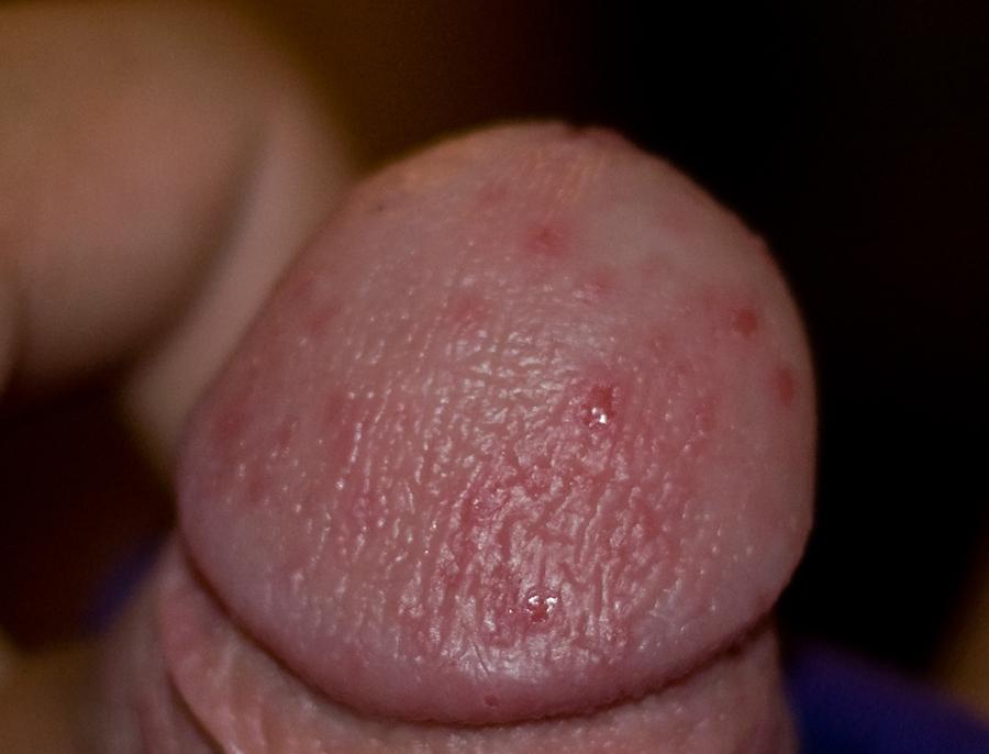 почему возникает аллергия на половом члене