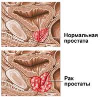 Рак простаты (рак предстательной железы)