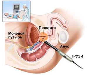 Лечение простатита эфирным маслом