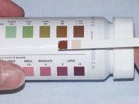 Кровь (эритроциты) в биохимии мочи