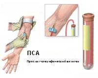 Рак предстательной железы фото 4 стадия