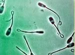 hlamidii-i-spermogramma