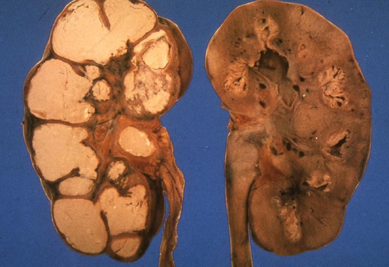 Туберкулез почки | Мой уролог
