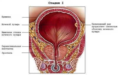 Рак простаты опухоль проросла в мочевой пузырь