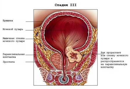 Стадии рака мочевого пузыря | Мой уролог