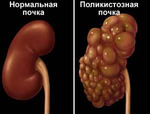 Антиспермальные антитела и болезни сердца и почек