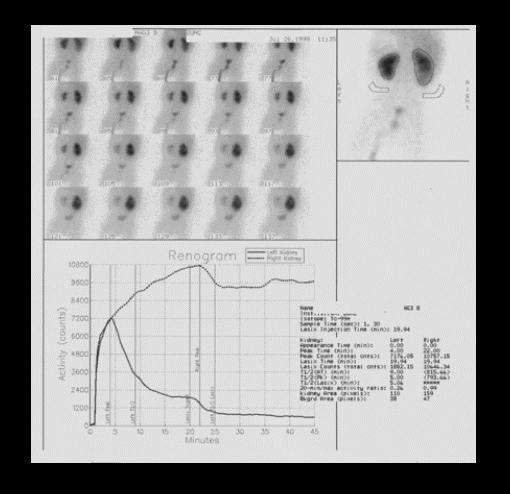 Сцинтиграфия почек (нефросцинтиграфия) | Мой уролог