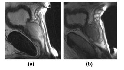 Саггитальные T2- взвешенные магнитно-резонансные томограммы (a, b) нормальной предстательной железы