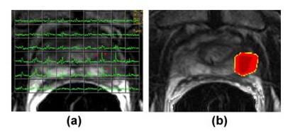 Аксиальные T2-взвешенные МРТ изображения с наложением магнитно-резонансной спектроскопической сетки