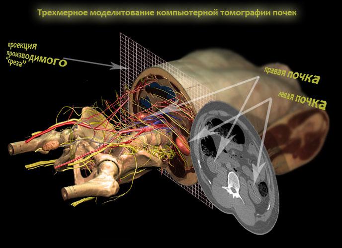 Компьютерная томография почек | Мой уролог