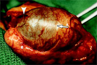 Разрушенное воспалительным процессом яичко