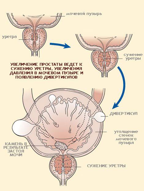 Дивертикул мочевого пузыря | Мой уролог