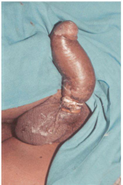 Мастурбация через уретру фото 605-80