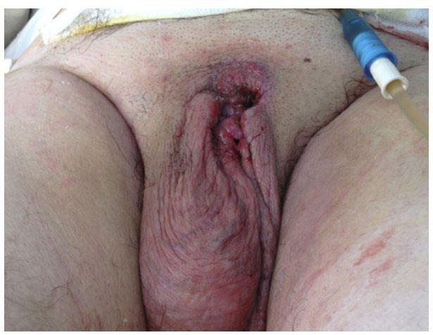 foto-rak-genitalii-pornuha-budu-ebat-v-zhopu
